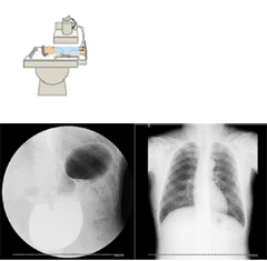 胸部レントゲン 上部消化管造影(胃バリウム検査)